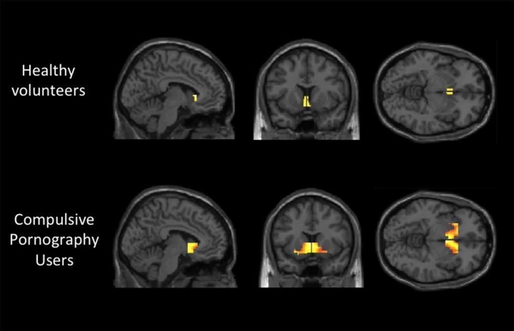 porn-addiction-brain-scan