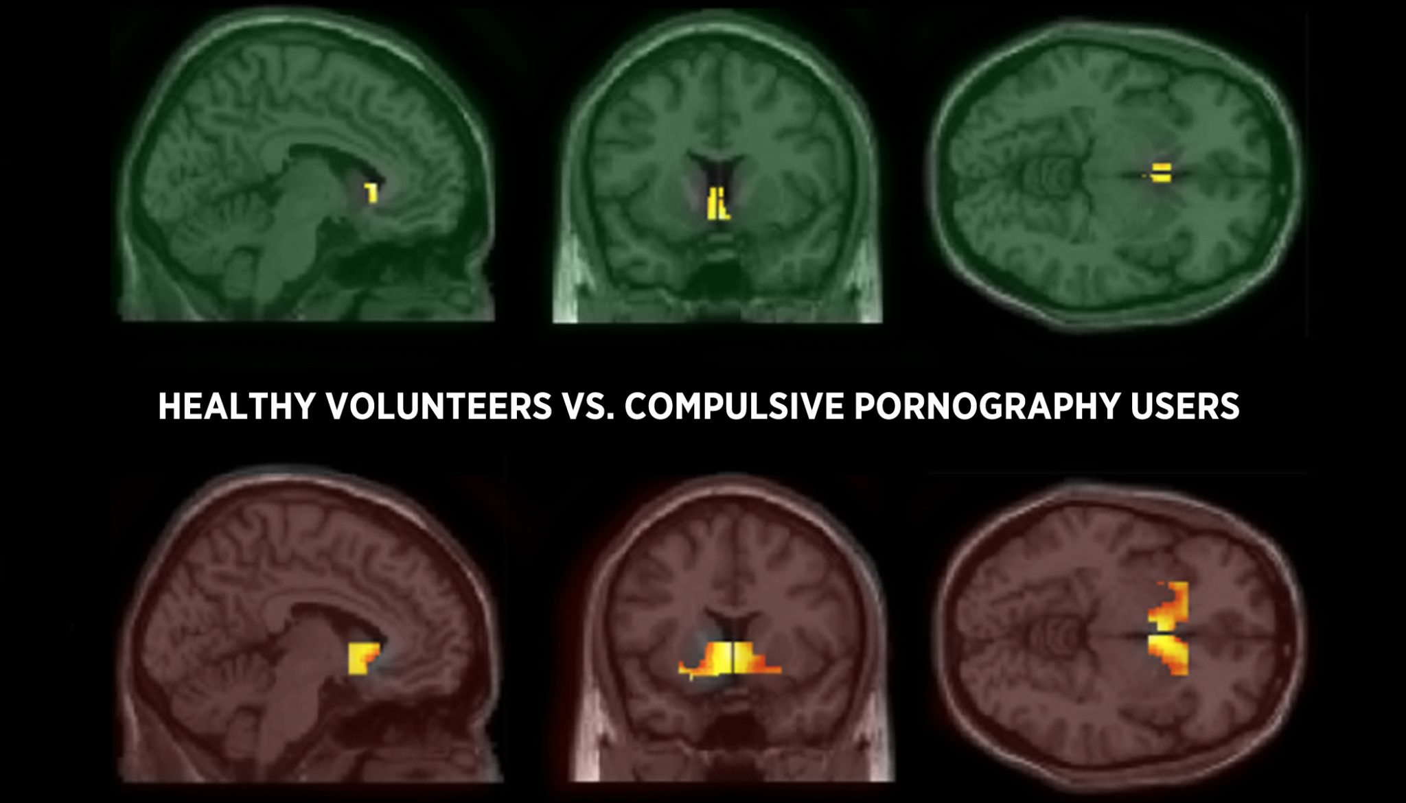 Cambridge Neuroscientists Find Striking Similarities in Brains of Porn and Drug Addicts