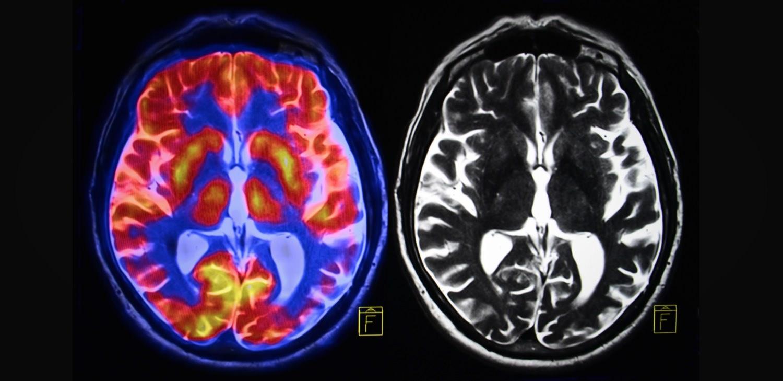 Porn, Addiction, and the Brain: 3 Misunderstandings Corrected by a Neurosurgeon
